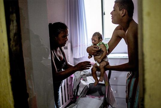 Zika effected baby