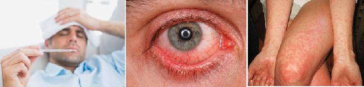 zika-symptoms